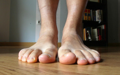 Preventative Care for Patients with Diabetes: Foot Care